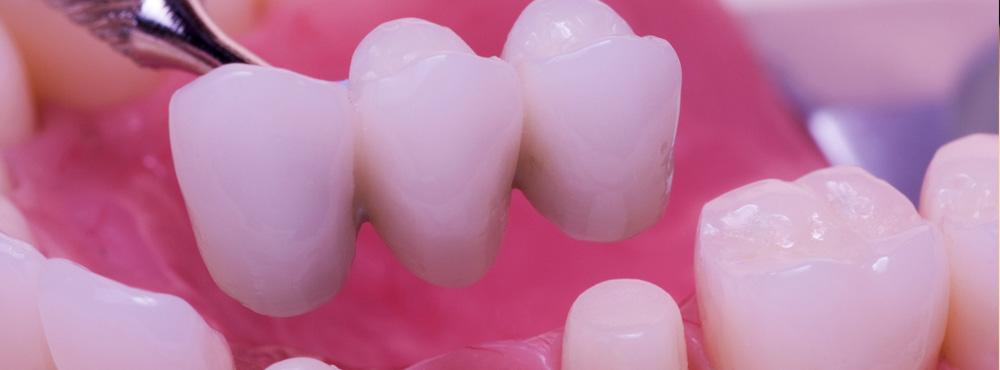 Dental Bridge Treatment - Dr. Seini, Dentist, near Orange, California