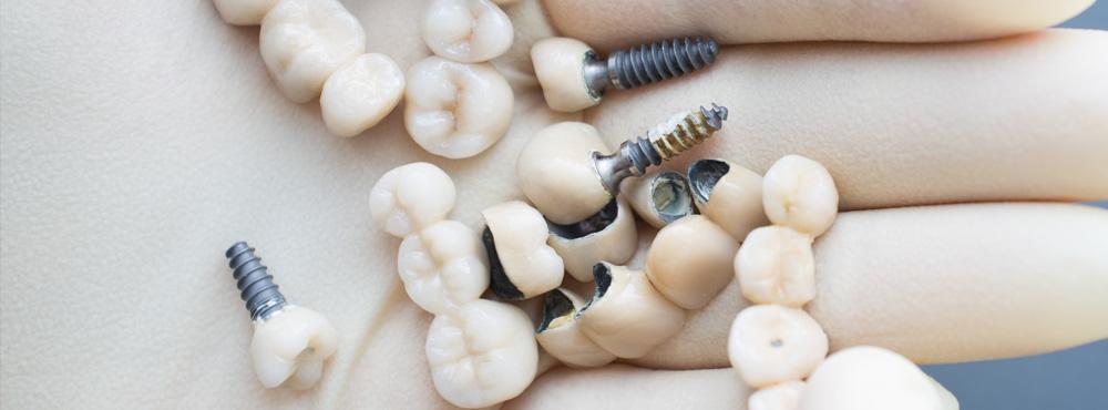 Dental Crown Treatment - Dr. Seini, Dentist, near Orange, California
