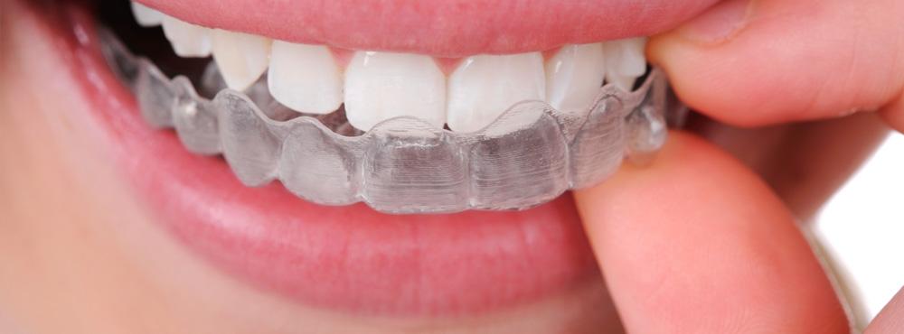 Invisalign Treatment - Dr. Seini, Orange, California Dentist