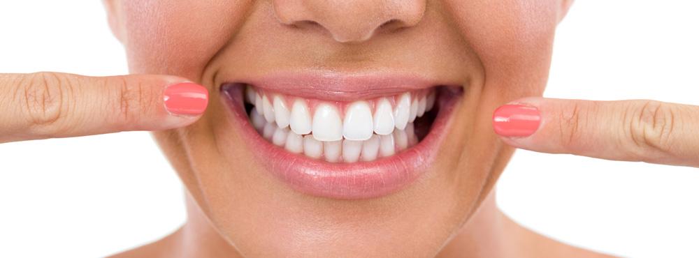 Lumineers - Dr. Seini, Dentist, Orange, California