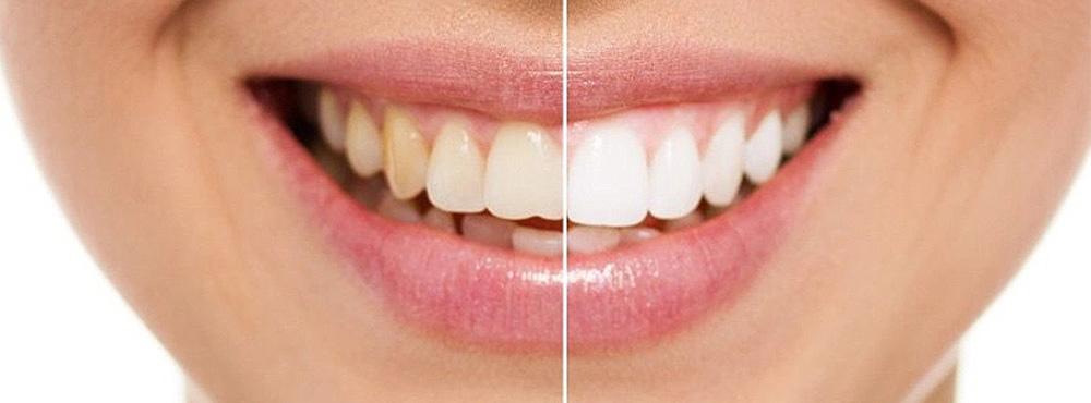 Teeth Whitening Treatment - Dr. Seini, Dentist, Orange, California