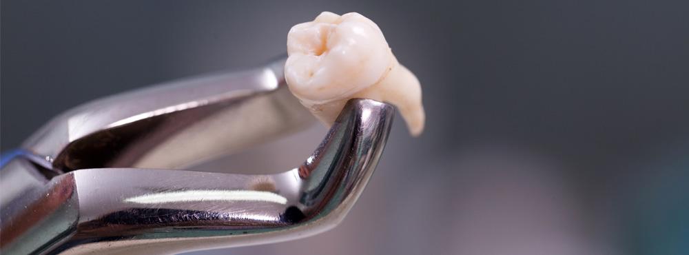 Wisdom Teeth Extraction - Dr. Seini, Orange, California Dentist