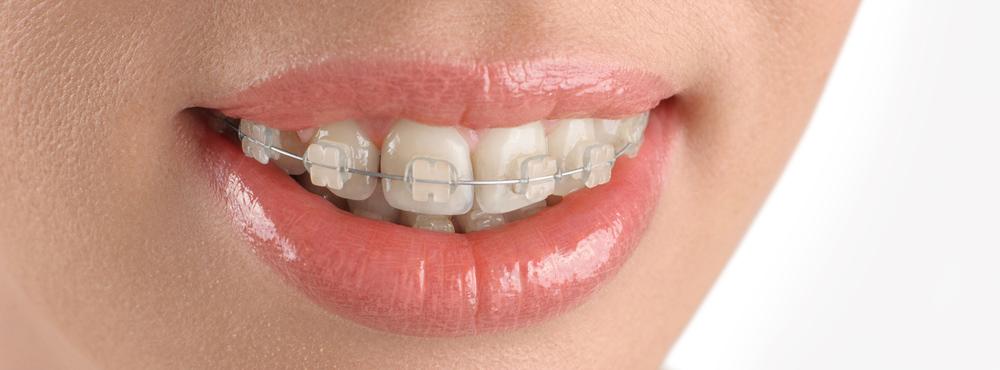 Orthodontics Dentist - Dr. Seini - Orange, California