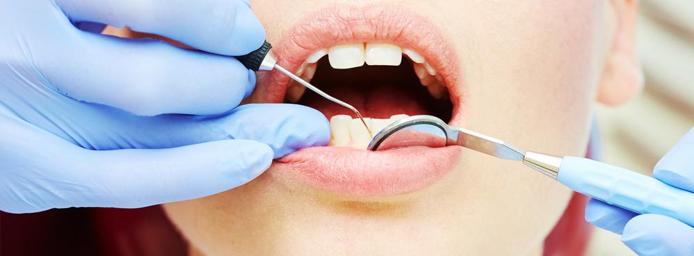Restorative Dentistry - Dr. Seini - Orange, California