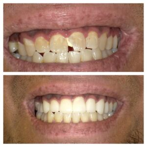 Before and After Veeners - Orange Cosmetic Dentistry